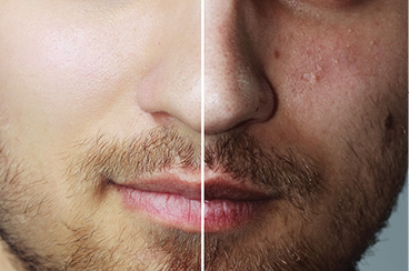laser acne treatment clinic