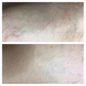 before and after photo of spider vein treatment